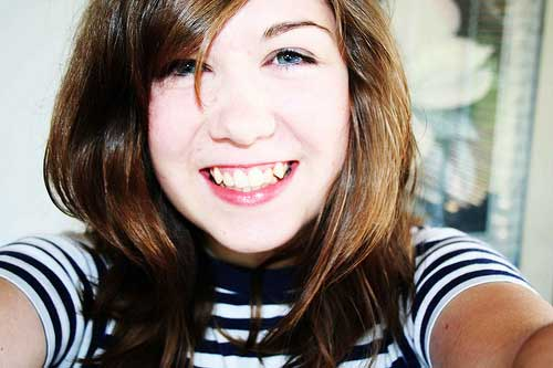 Широкая улыбка